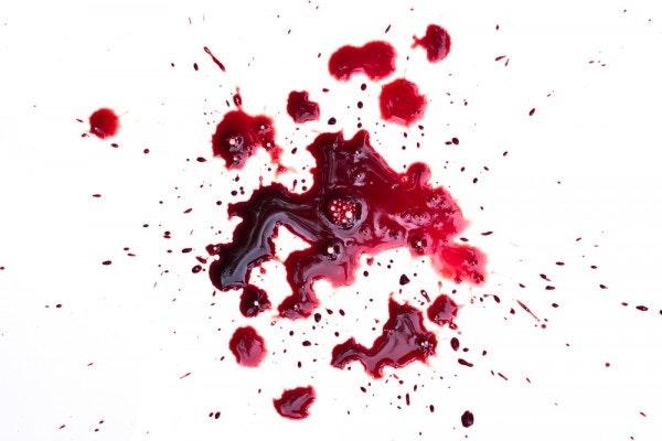 Flecken entfernen – Blutflecken